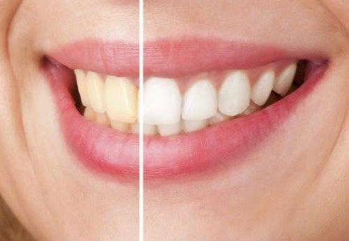 自然な方法でどうやって歯を白くする?