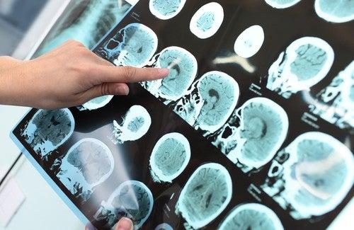 アルツハイマー病は予防できる?