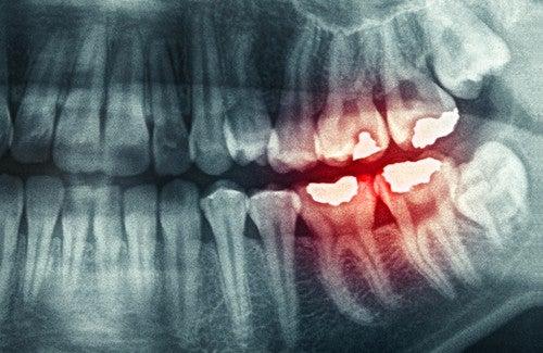歯ぎしり その原因ともたらす結果