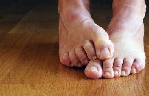 爪カビに効く自然療法