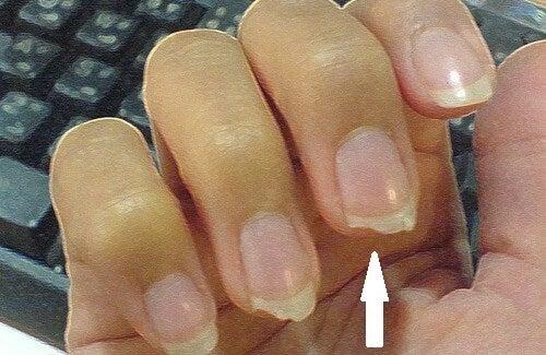 爪割れの予防策