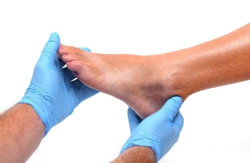 足首や足のむくみ:原因と予防
