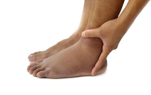 足のケガ2