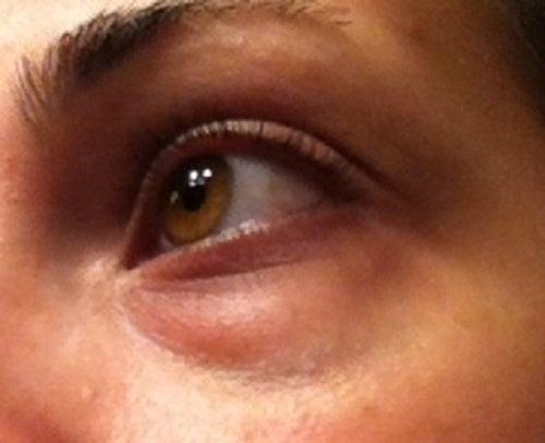 目の下の隈を自然に隠す方法