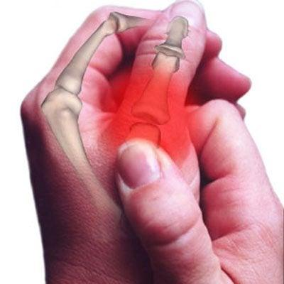 手や手首の痛みの原因