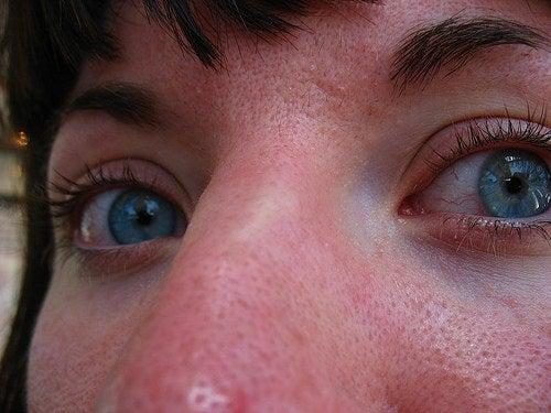 鼻の黒ずみ