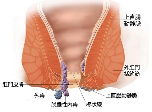 カモミールを使った痔の自然療法1
