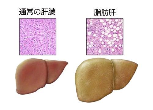 脂肪肝の原因となる食生活