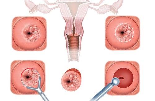 子宮膣部びらんの症状