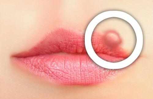 口唇ヘルペスの予防法
