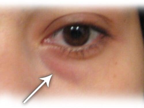 目の下の くま に使える家庭療法