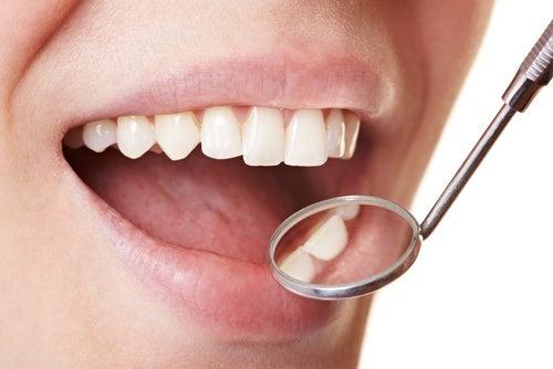 歯垢を落とす5つの方法