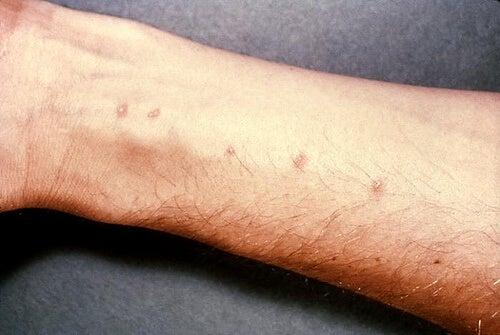 アレルギー2