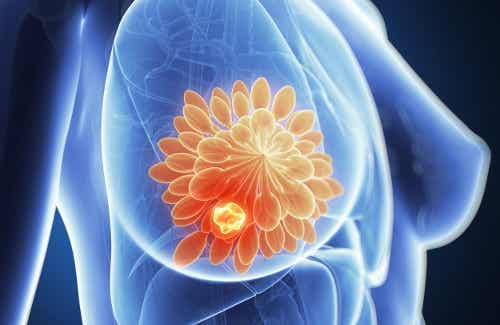 乳房の痛み 考えられる7つの原因