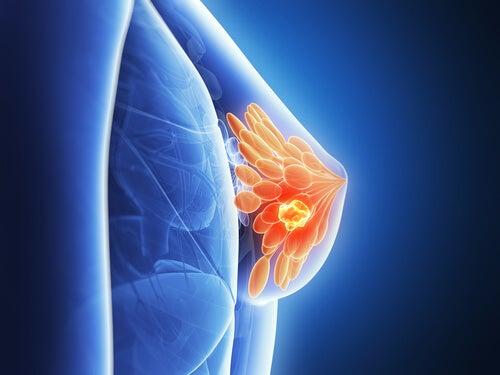 ブラジャーを使うと乳がんになりやすい?
