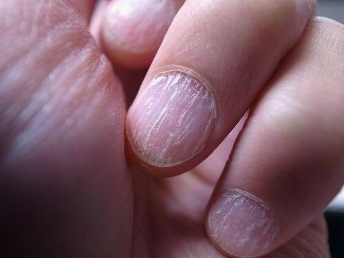 手の爪真菌症