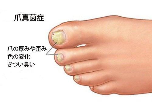 家庭でできる爪真菌症治療