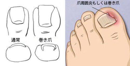 足の巻き爪 の症状
