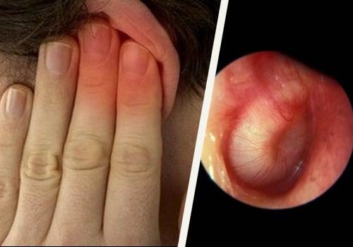 耳の感染症の治療方法