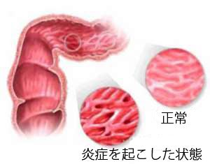 ご用心! 過敏性腸症候群の人が/食べてはいけない食品