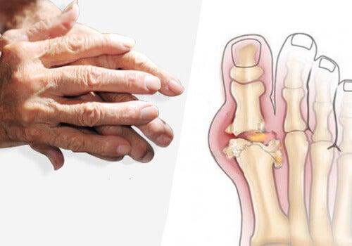 関節炎の治療のすすめ