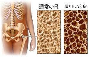 骨粗しょう症を防ぐ食生活