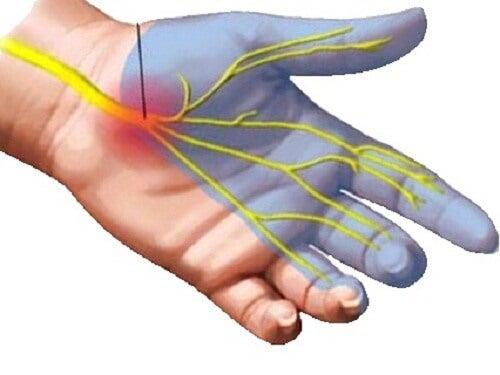 手根管症候群の自然療法