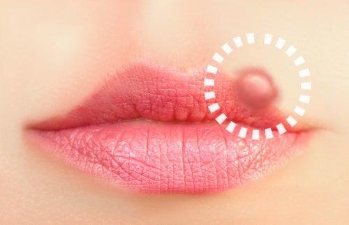 口唇ヘルペスに効く10の自然療法
