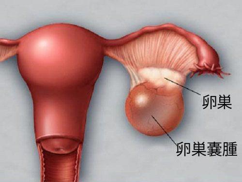 卵巣嚢腫の予防と早期発見