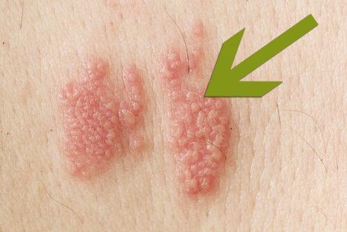 知っておきたい帯状疱疹の基礎知識