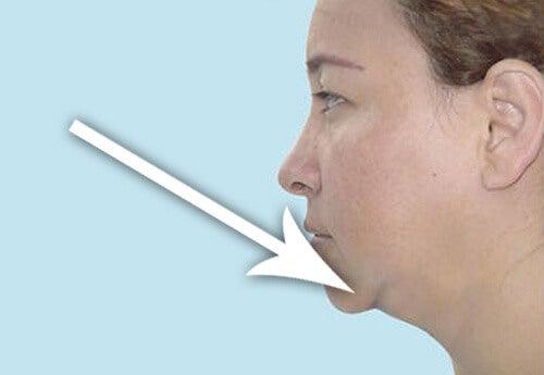スリムな顎になる4つの方法
