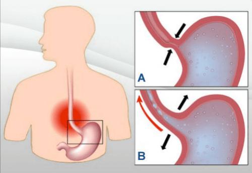 胃酸の逆流に効果的な/7つの自然療法