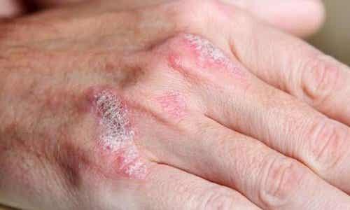 乾癬に効く自然療法