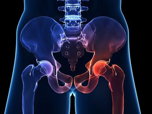 変形性股関節症 -- 症状と予防法