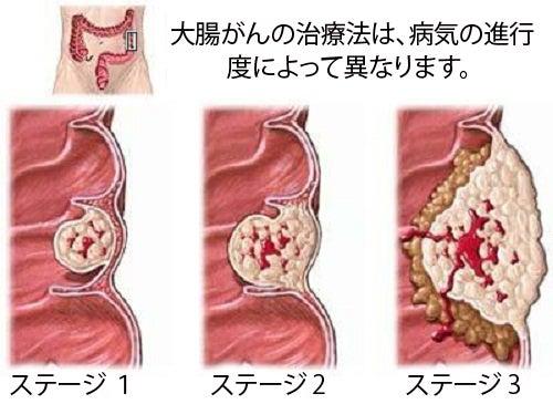 大腸がんについて/知っておくべきことがら
