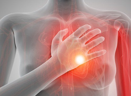 心臓発作のイメージ画像