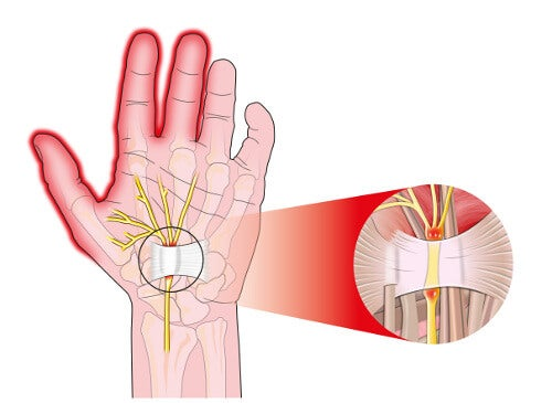 手根管症候群の痛みを軽減する5つの方法