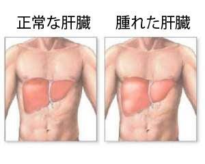 あなたの肝臓、腫れていませんか?