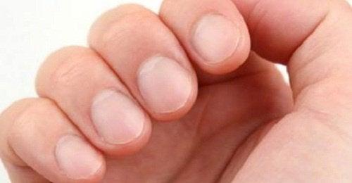 爪の状態でわかる健康への/8つの警告