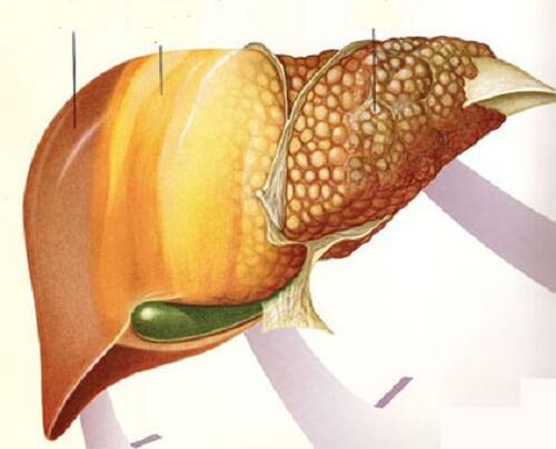 脂肪肝疾患の改善に役立つ果実