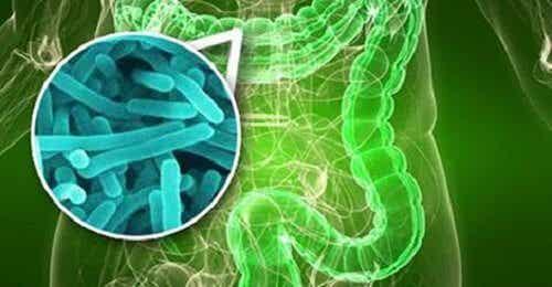 腸内細菌異常増殖症候群の10の兆候