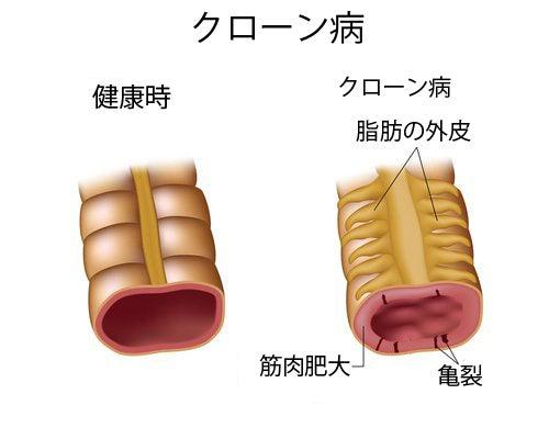 クローン病の症状と治療