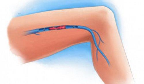 脚の血栓の症状