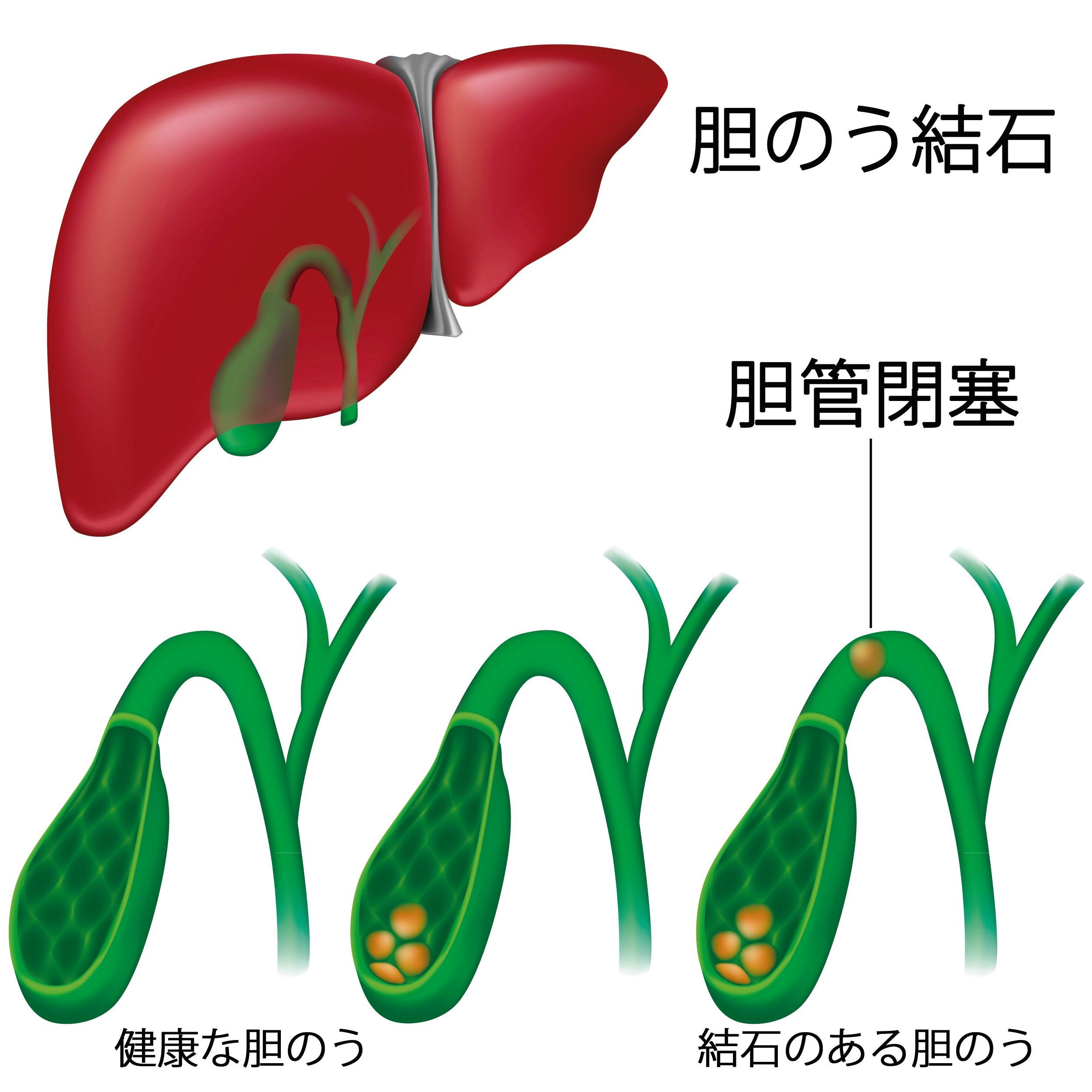 胆嚢結石の症状