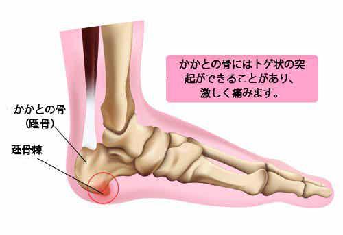 踵骨棘の予防
