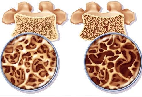 女性の骨粗しょう症:予防と治療