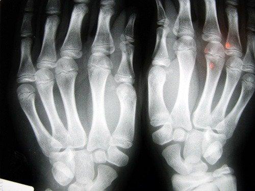 2-手の指.x線