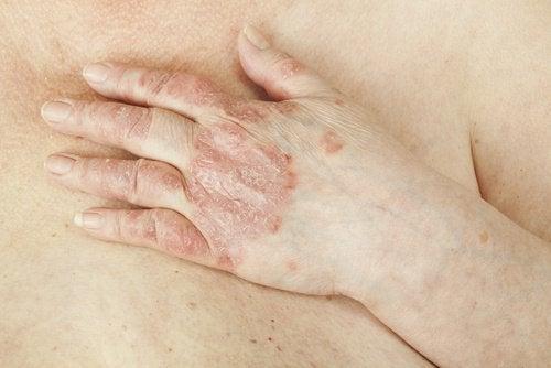 皮膚が剥がれ落ちる病気/乾癬(かんせん)は治る?
