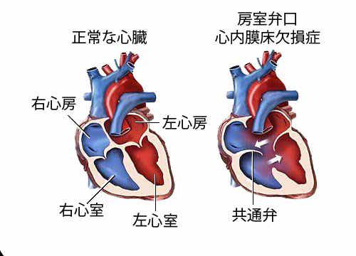 心雑音って何?知っておきたい心雑音の7つの症状