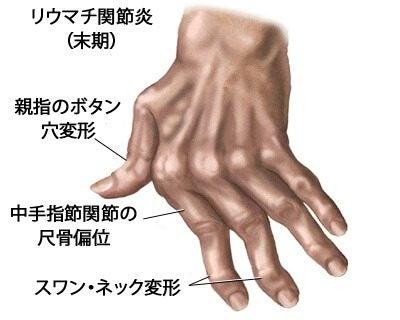 手の関節炎を治療する/7つの自然療法